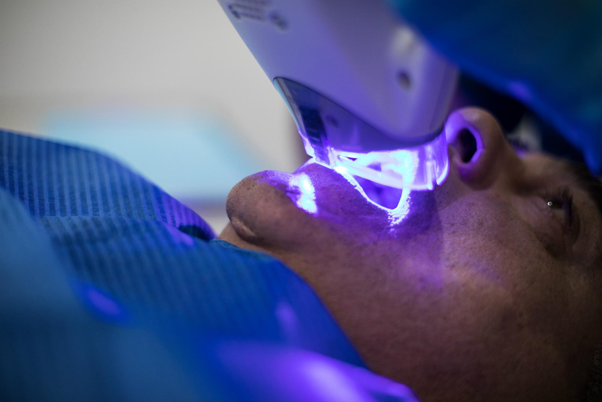 Estetica Dental en San Sebastian de los Reyes